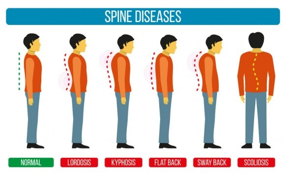 spinal disorders nursing assignment help