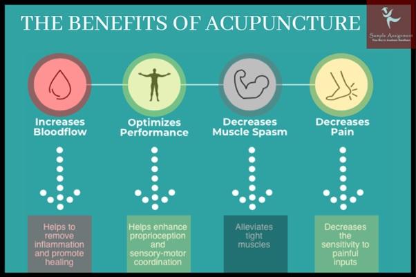 benefits of acupunture