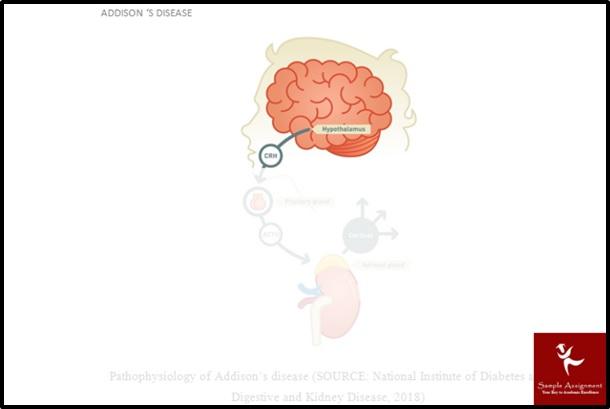 hypothalmus1301