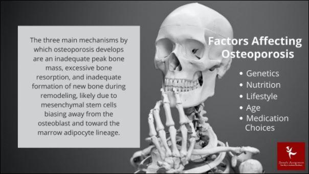 osteoporosis nursing homework